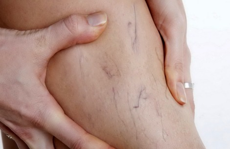tratament-vascular-alma-clinic