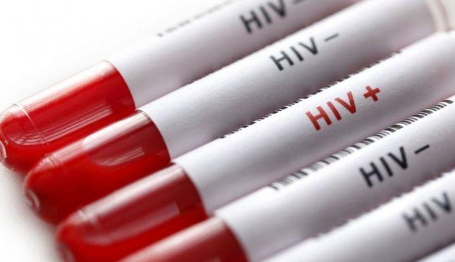 Istoria virusului HIV